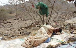 왜 예멘에서는 한 시간에 1명씩 콜레라로 목숨을 잃어야 할까요?